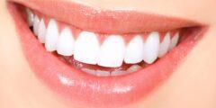 أطعمة مضرة للأسنان تسبب تسوس الاسنان وتضعفها
